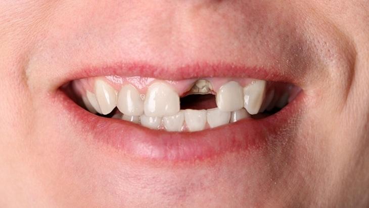 Вершки и корешки: можно ли спасти зуб, от которого остался только корень?