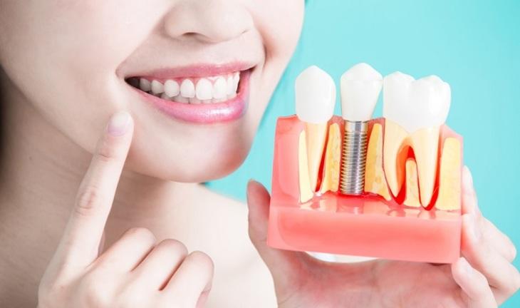 7 причин не откладывать имплантацию зубов