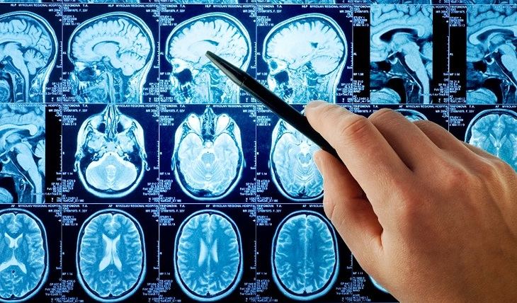 Multiple sclerosis: diagnosis and treatment - photo