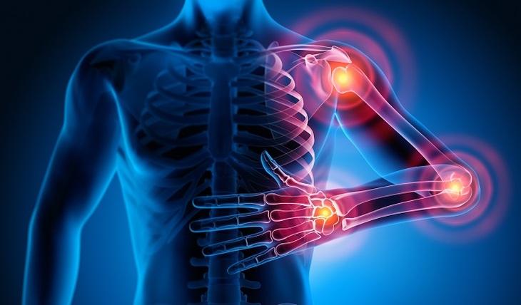 Rheumatologists sound the alarm - photo