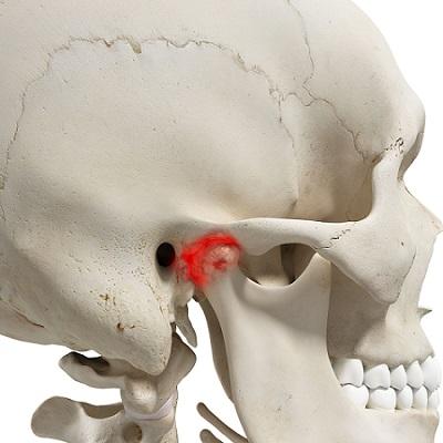 Почему болит голова и зубы одновременно